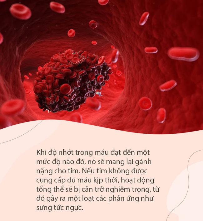 4 tín hiệu cho thấy mạch máu đặc như cháo, chần chừ không đi khám sẽ đối mặt với nguy cơ đột quỵ và xuất huyết não nghiêm trọng-2