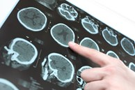 Một phụ nữ bị nhồi máu não và tử vong sau nửa tháng, bác sĩ thở dài: Ăn loại gia vị này hàng ngày thì làm sao mạch máu không bị tắc