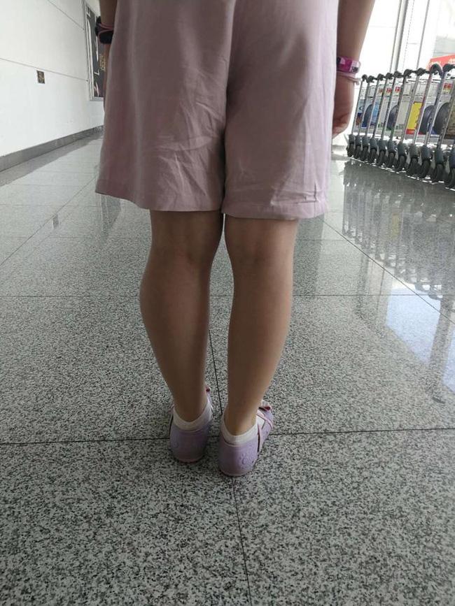 Thấy sự khác biệt rõ ràng này ở 2 chân của con, cha mẹ đau lòng khi bác sĩ nói con bị ung thư xương, việc phẫu thuật là một thách thức-2