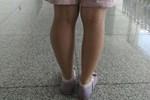 Cô gái 14 tuổi phải cắt cụt 2 chân vì ung thư xương, bác sĩ cảnh báo đây là căn bệnh nhiều người trẻ mắc phải trong độ tuổi dậy thì-4