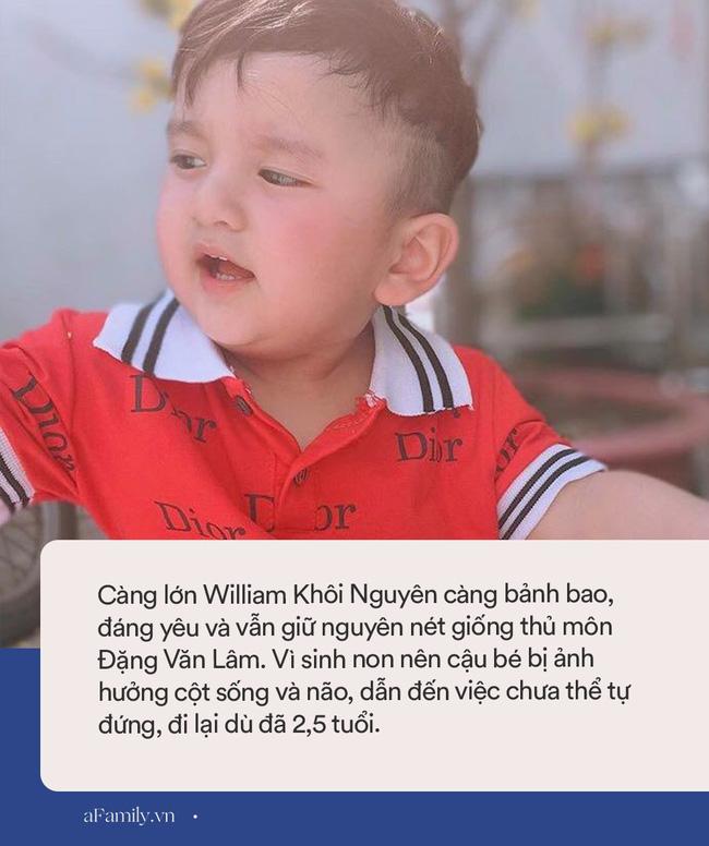 Bất ngờ với ngoại hình hiện tại của cậu bé được gọi là Đặng Văn Lâm phiên bản nhí, lớn lên bị phát hiện mắc bệnh khó điều trị-5
