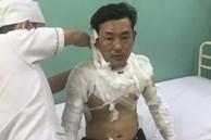 Kẻ tẩm xăng doạ đốt, cướp tiền chi nhánh ngân hàng TPBank ở Sài Gòn là ai?