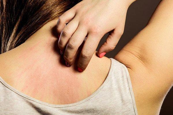 Trước khi ung thư ập đến, trên cơ thể sẽ có 2 cơn ngứa có thể phát hiện bệnh