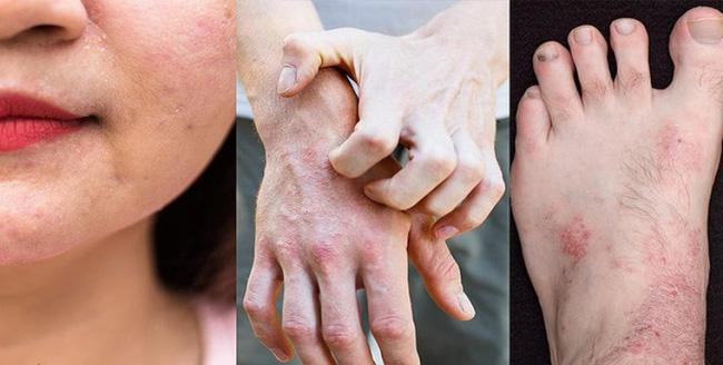 Bác sĩ da liễu cảnh báo bệnh về da rất dễ tái phát khi trời trở lạnh, dù trẻ hay già cũng đều khó tránh!-1