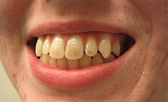 Bất luận nam hay nữ nếu miệng có 3 điểm bất thường chứng tỏ dạ dày đã tổn thương, khám ngay trước khi ung thư đến-2
