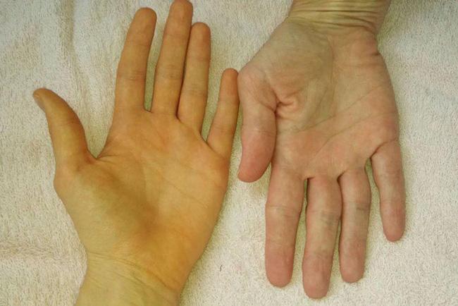Nếu nhận thấy da có 4 màu sắc bất thường này rất có thể đó là tín hiệu của khối u ác tính mà bạn không nên chủ quan-2