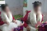 Dì ruột đưa cháu gái đến bệnh viện khám bệnh, bác sĩ thông báo phải cắt cụt tay và gọi cảnh sát, hé lộ chân tướng tàn độc-10
