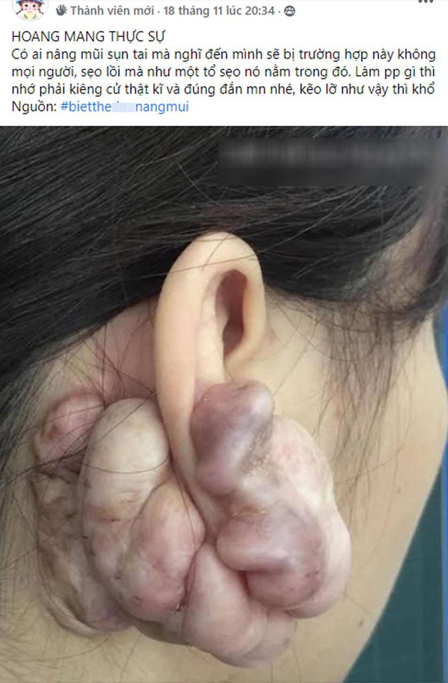 Hình ảnh sẹo đùn kín tai do nâng mũi bằng sụn tai gây sốc trên MXH: Có hay không việc sửa mũi đẹp xong khiến tai bị dị dạng?-1