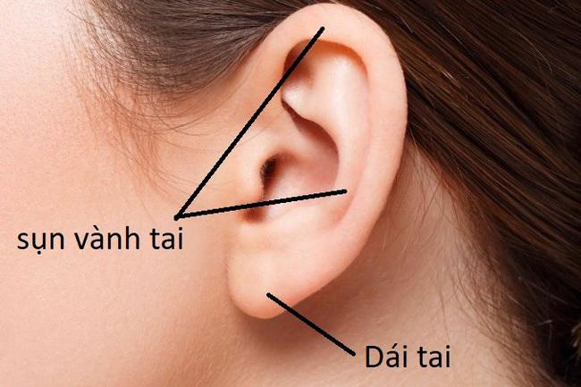 Hình ảnh sẹo đùn kín tai do nâng mũi bằng sụn tai gây sốc trên MXH: Có hay không việc sửa mũi đẹp xong khiến tai bị dị dạng?-4
