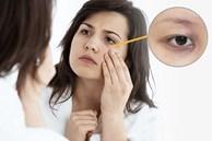 Bất kể nam hay nữ trên cơ thể xuất hiện '2 đen 2 hôi' chứng tỏ suy giảm chức năng thận