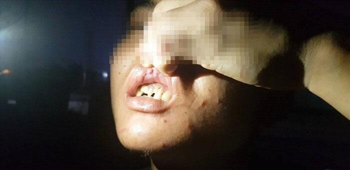Tạm giữ hình sự nữ chủ quán bánh xèo nghi bỏ đói, đánh đập dã man 2 nhân viên giúp việc-1