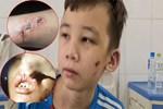 Video: Công an Bắc Ninh lên tiếng vụ bé trai 14 tuổi bị chủ quán tra tấn dã man-1