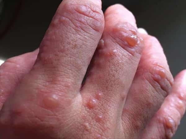 Bệnh tiểu đường đang âm thầm phát triển nếu bạn có một trong 6 dấu hiệu này trên da: Đa phần hệt như viêm da khiến nhiều người chủ quan-2