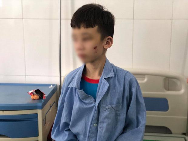 Lạnh người trước lời khai của nữ chủ quán bánh xèo bạo hành nhân viên ở Bắc Ninh: Em lấy cây cọ chà nhà vệ sinh đánh, chọc vô mắt-2