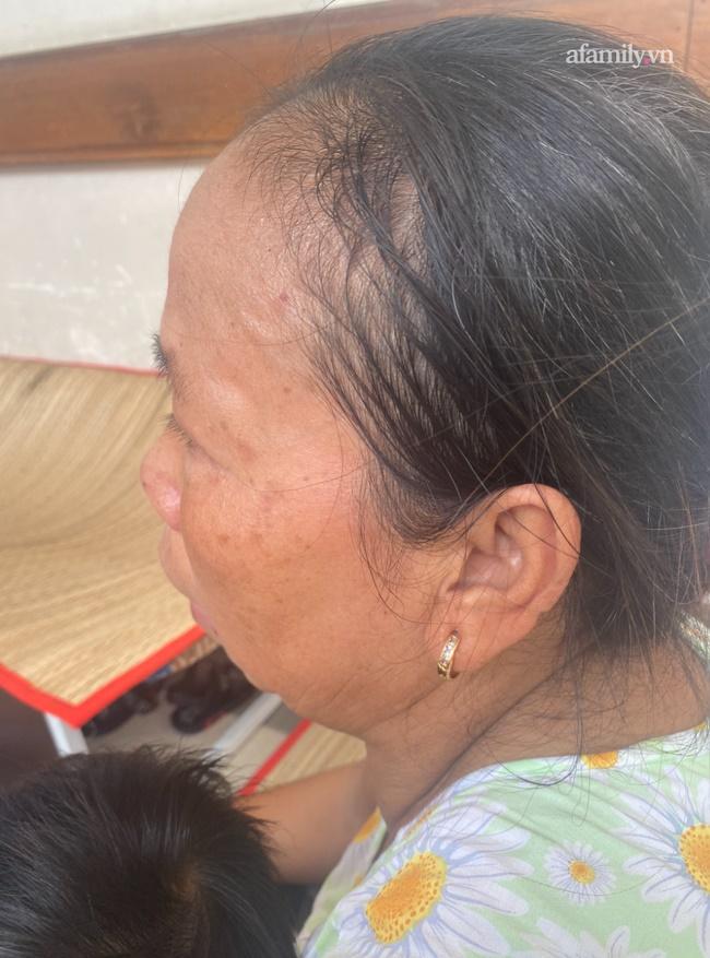 Đau xót lời kể bà ngoại bé gái 3 tuổi nghi bị mẹ đẻ bạo hành chấn thương sọ não: Bị đánh vì để phân dính vào dép?-9