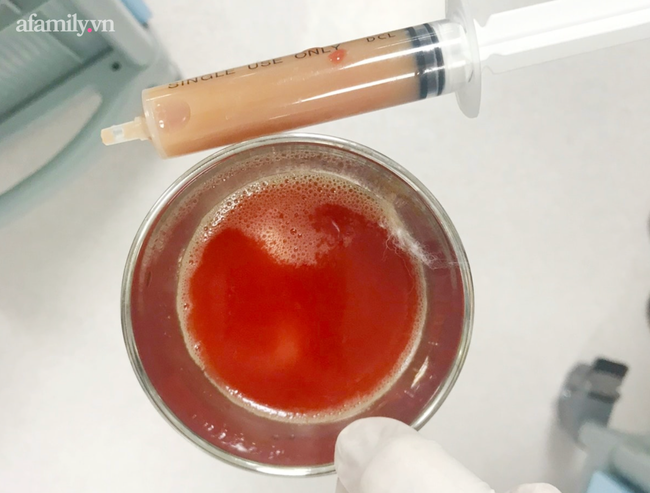 Bé trai 14 tuổi ở Kiên Giang nhiễm khuẩn bí ẩn, tính mạng nguy kịch sau khi vô tình vấp té trên sà lan-3