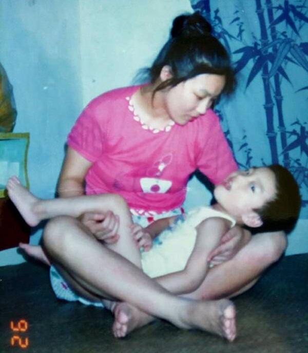Con sinh ra bị khiếm khuyết, mẹ chấp nhận ly hôn một mình nuôi đứa trẻ và ai cũng ngỡ ngàng với kết quả gần 30 năm sau-2