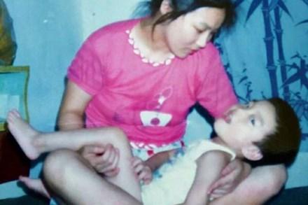 Con sinh ra bị khiếm khuyết, mẹ chấp nhận ly hôn một mình nuôi đứa trẻ và ai cũng ngỡ ngàng với kết quả gần 30 năm sau