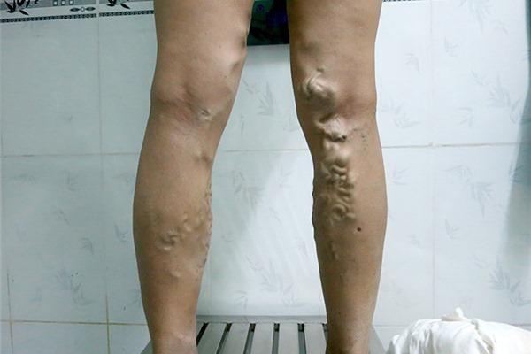 Mặc quần chật, đi giày cao gót: Thói quen gây ra căn bệnh chết người ở phụ nữ-1