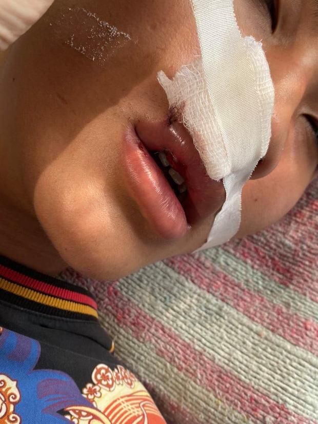 Hà Nội: Xác minh vụ việc nam sinh bị nhóm bạn đánh gãy răng, nhập viện khâu 7 mũi-2