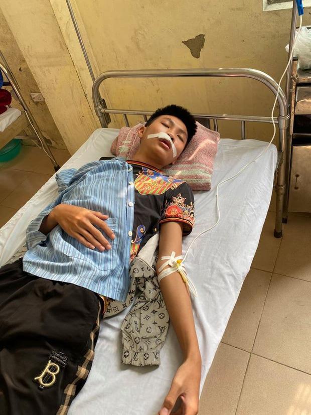 Hà Nội: Xác minh vụ việc nam sinh bị nhóm bạn đánh gãy răng, nhập viện khâu 7 mũi-1