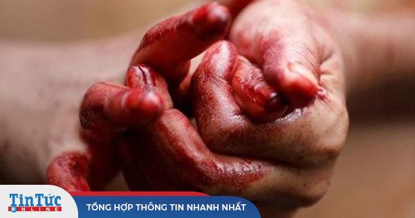 Người đầu tiên ở Việt Nam bị 'đổ mồ hôi máu'