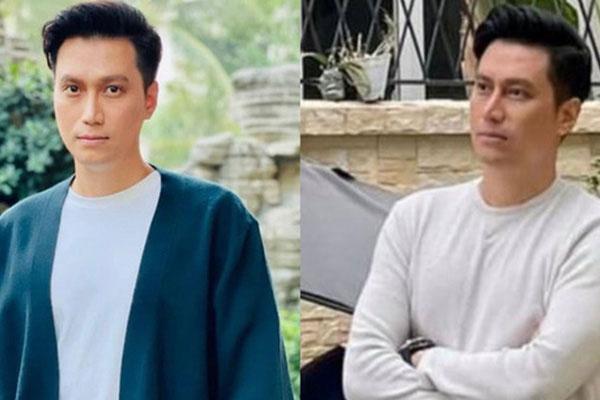 Diễn viên Việt Anh gây hoang mang với combo mặt đơ cứng và mũi méo mó
