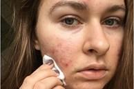 Chăm chỉ rửa mặt mỗi ngày mà da vẫn xấu tệ hại: Xem lại ngay bạn có mắc phải 3 lỗi này không?