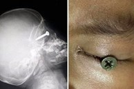 Cậu bé 3 tuổi suýt bị mù sau khi đinh vít đâm vào mắt