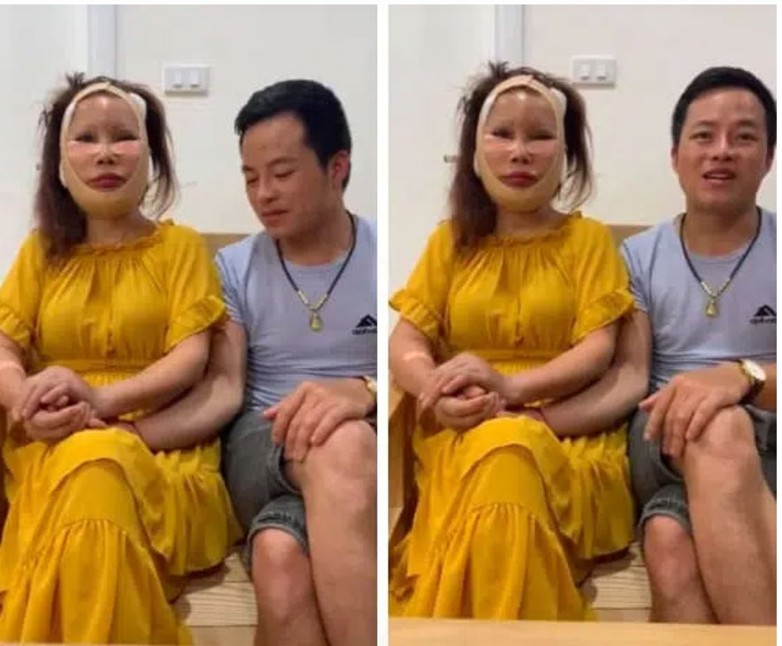 Cô dâu 63 tuổi tiếp tục xuất hiện trong livestream với khuôn mặt méo lệch, nhăn nhó sau đại phẫu căng da mặt hàng chục triệu khiến dân mạng hốt hoảng-1