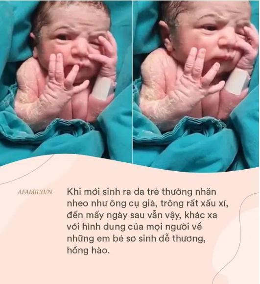 Em bé sinh ra mặt thâm tím, đen nhẻm khiến mẹ thất vọng tràn trề nhưng mấy tháng sau đã có cú lột xác ngoạn mục-4