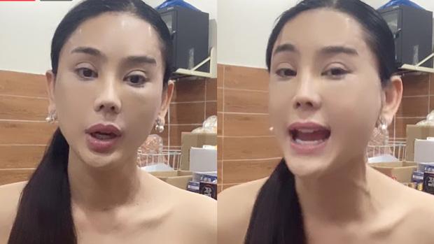 Lâm Khánh Chi gây hoang mang khi xuất hiện với gương mặt đơ cứng và mí mắt sưng to khác lạ-3