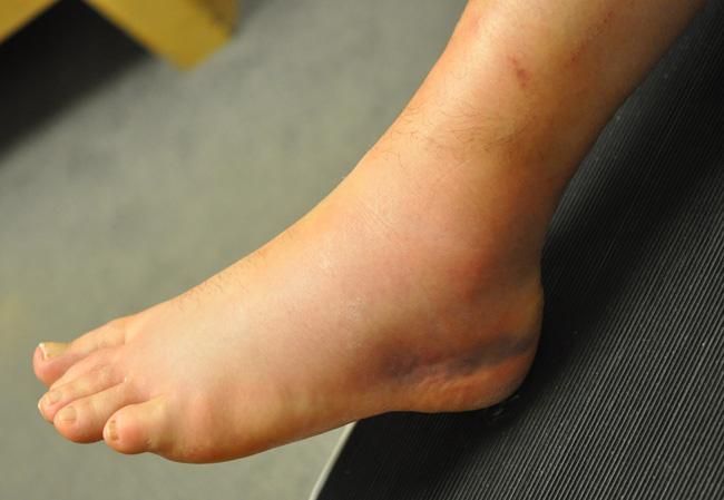 Bỗng dưng thấy 3 dấu hiệu này ở chân, bạn cần đi khám ung thư gan, xương ngay lập tức!-3