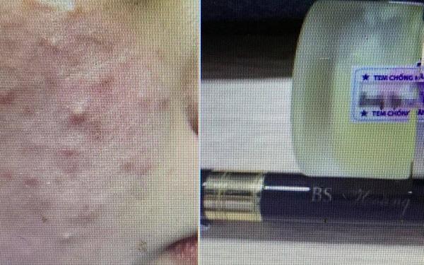 Đắp kem trộn để làm đẹp da, sau một tuần, bệnh nhân nữ bị tổn thương giống bạch biến-1