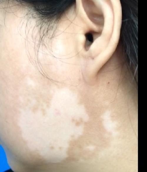 Đắp kem trộn để làm đẹp da, sau một tuần, bệnh nhân nữ bị tổn thương giống bạch biến-2