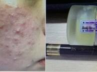 Đắp kem trộn để làm đẹp da, sau một tuần, bệnh nhân nữ bị tổn thương giống bạch biến