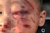 Bé trai 2 tuổi bị chó nhà cắn rách mặt