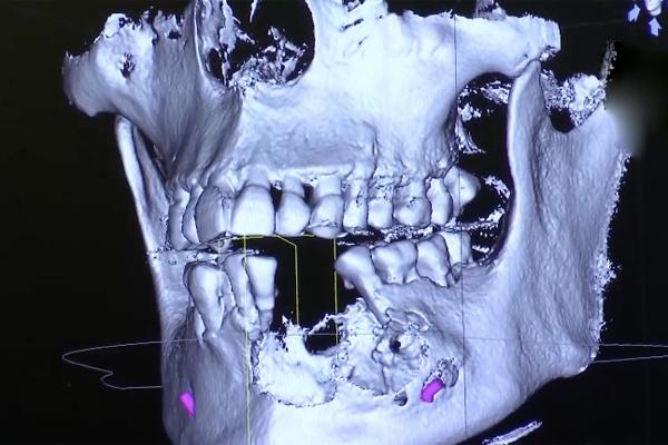 Sức khoẻ Long Chun sau 1 tháng nhập viện vì u xương hàm-3