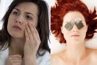 Lẹo mắt bỗng dưng xuất hiện khiến bạn vừa khó chịu vừa mất tự tin, làm thế nào để chúng sớm biến mất?