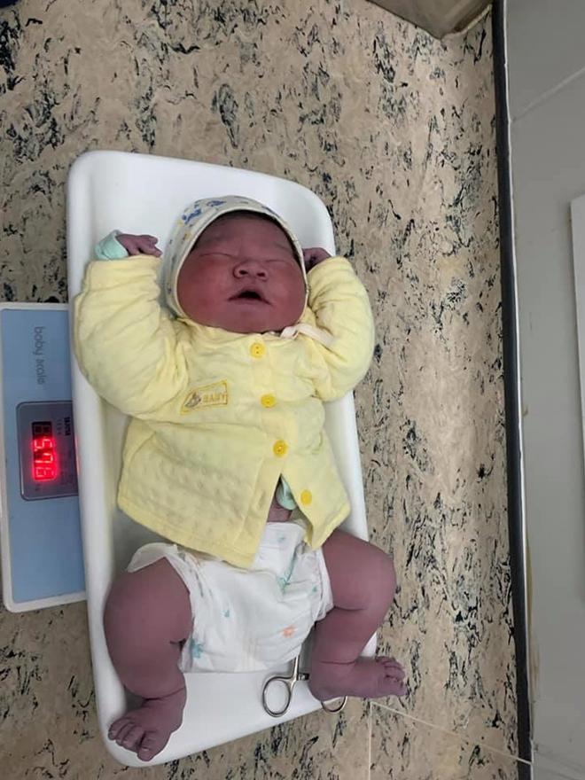 Bé trai gần 6kg chào đời tại BV Bệnh Nhiệt đới Trung ương-2