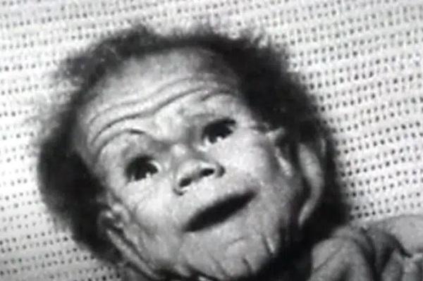Chào đời với làn da nhăn nheo như một ông già, bé trai khiến bố mẹ sốc nặng, nhiều năm sau ai cũng choáng khi nhìn thấy hình hài đứa trẻ-3