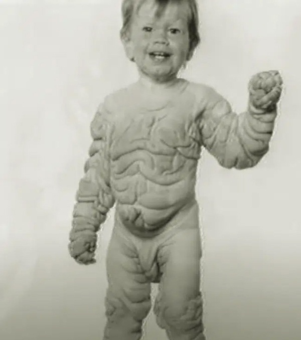 Chào đời với làn da nhăn nheo như một ông già, bé trai khiến bố mẹ sốc nặng, nhiều năm sau ai cũng choáng khi nhìn thấy hình hài đứa trẻ-5