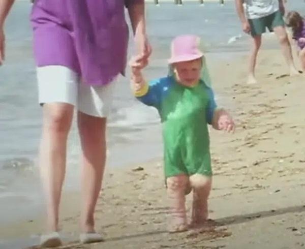 Chào đời với làn da nhăn nheo như một ông già, bé trai khiến bố mẹ sốc nặng, nhiều năm sau ai cũng choáng khi nhìn thấy hình hài đứa trẻ-8