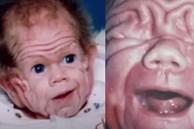 Chào đời với làn da nhăn nheo như một ông già, bé trai khiến bố mẹ sốc nặng, nhiều năm sau ai cũng choáng khi nhìn thấy hình hài đứa trẻ