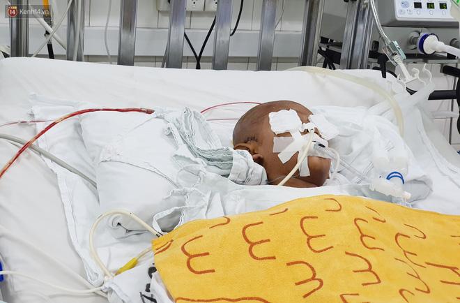 Người mẹ có con trai 4 tuổi bị đâm xuyên mắt, xuất huyết não: Cha mới chết 4 tháng, giờ con làm sao em không sống nổi-2