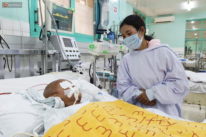 Người mẹ có con trai 4 tuổi bị đâm xuyên mắt, xuất huyết não: Cha mới chết 4 tháng, giờ con làm sao em không sống nổi-12
