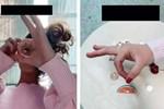 Món ăn không trẻ nào không mê nhưng tiềm ẩn nguy cơ hóc nghẹn hàng đầu, có bé gái 2 tuổi đã tử vong chỉ vì 1 miếng-5