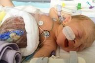 Bất chấp dự đoán chỉ có 5% khả năng sống sót, cậu bé sinh ra với nội tạng nằm ngoài cơ thể đã khiến nhiều người ngỡ ngàng sau 4 năm