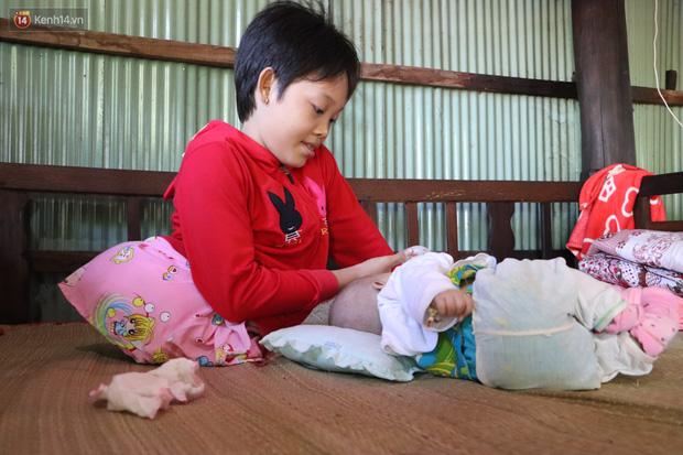 Xót cảnh bé gái 12 tuổi phải nghỉ học, cắt bỏ đôi chân sau trận sốt bại liệt: Tóc con dần rụng hết rồi-1