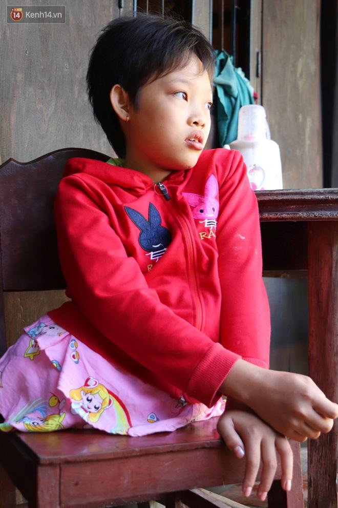 Xót cảnh bé gái 12 tuổi phải nghỉ học, cắt bỏ đôi chân sau trận sốt bại liệt: Tóc con dần rụng hết rồi-2